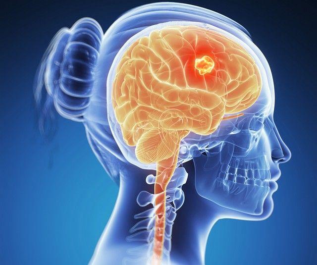 verme oxiurus anita tratamentul virusului papilomului la femeile medicamentoase