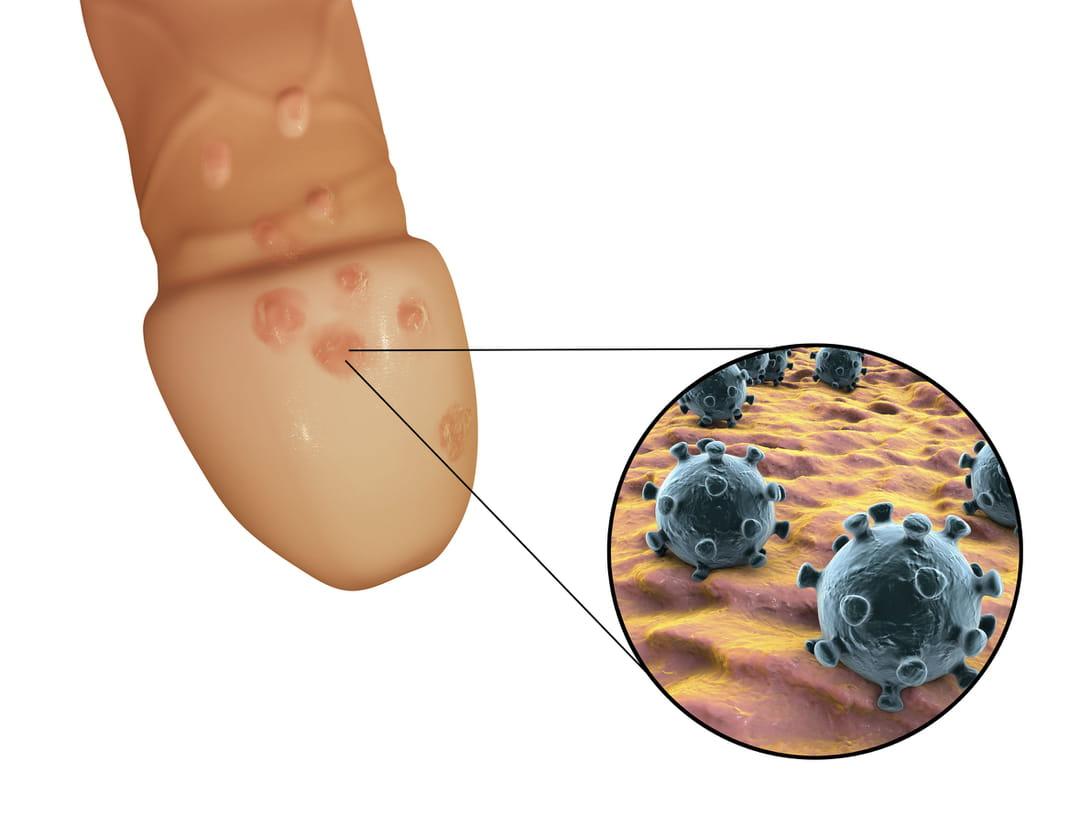 papillomavirus traitement chez l homme