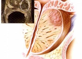 cancerul de prostata evolutie paraziti tratamentul bioresonancei