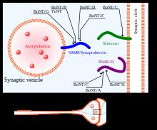vestibular papillomatosis diagnosis