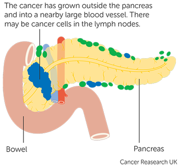 cancerul pancreatic exocrin geo helminth definition