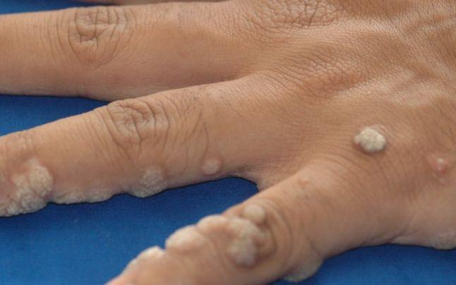 negii din care apar pe degete