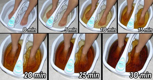 detoxifiere electroliza poze cu negi genitali