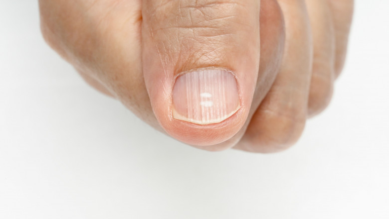 tratament giardia panacur tratamentul condilomului vaginal