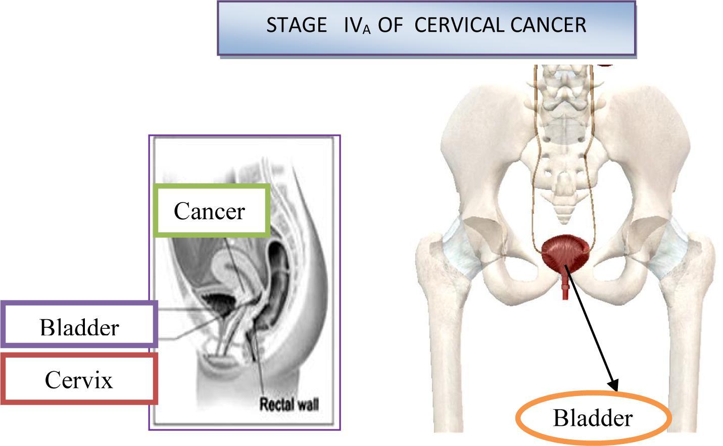 cancerul nu se vindeca