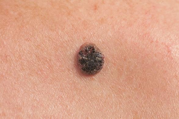 unde apare cancerul de piele medicamente moderne pentru viermi pentru viermi