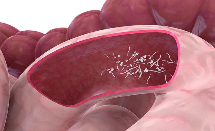 medicamente anti vierme în timpul sarcinii