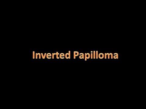 inverted urothelial papilloma histology