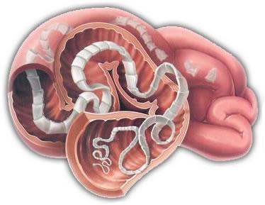 Paraziti u mozgu, Paraziti u ljudskom mozgu