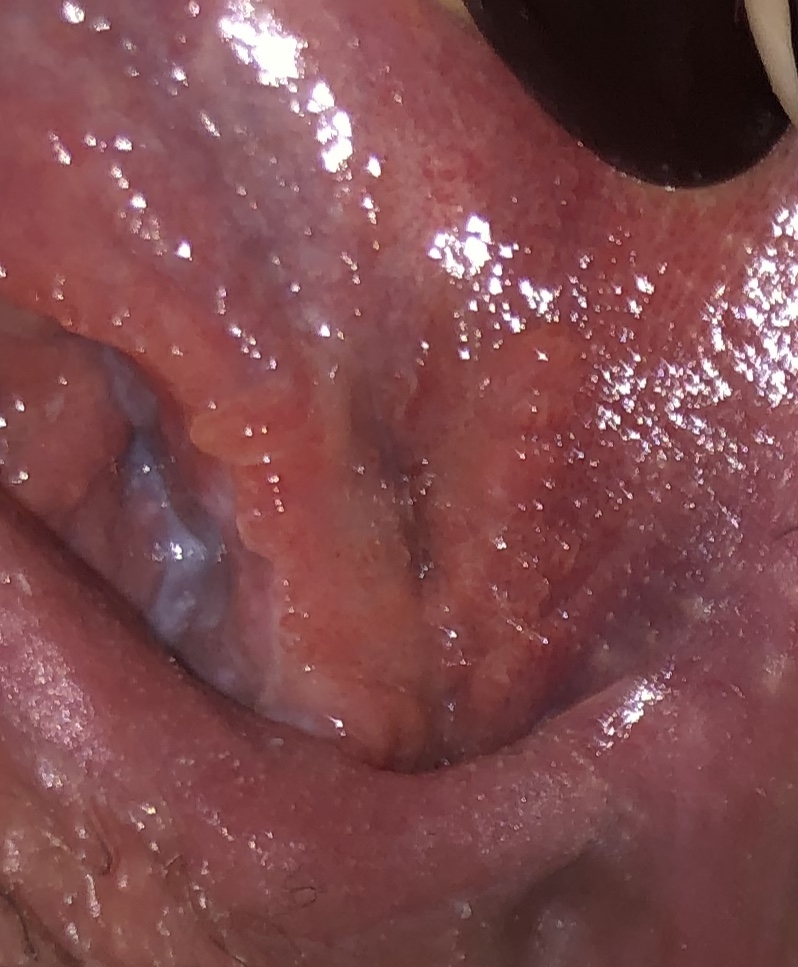 herpes genital sau hpv tratamentul helmintelor intestinale