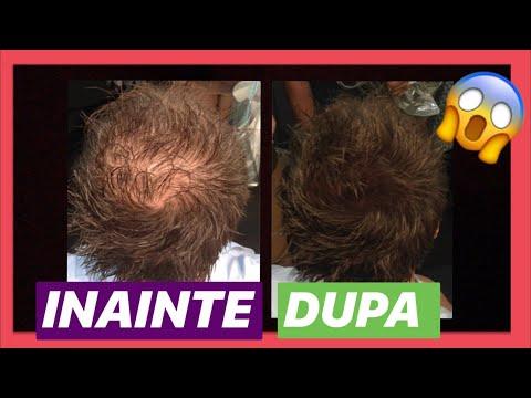 tratamentul paraziților alopeciei