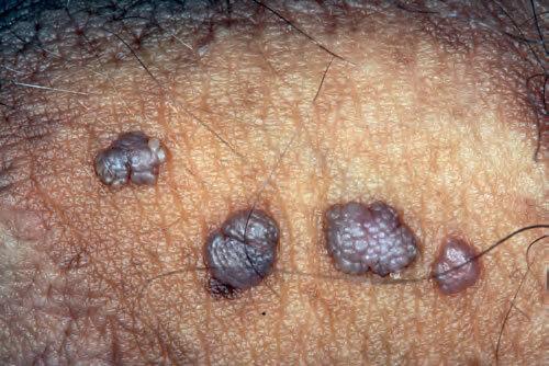 giardia simptome scaun galben injecție de gaură de vierme de capră