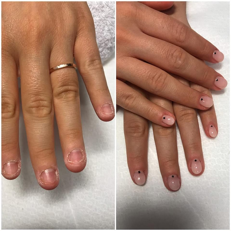 unghia condilomului