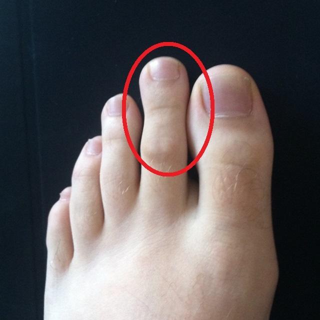 degetele de la picioare se udă