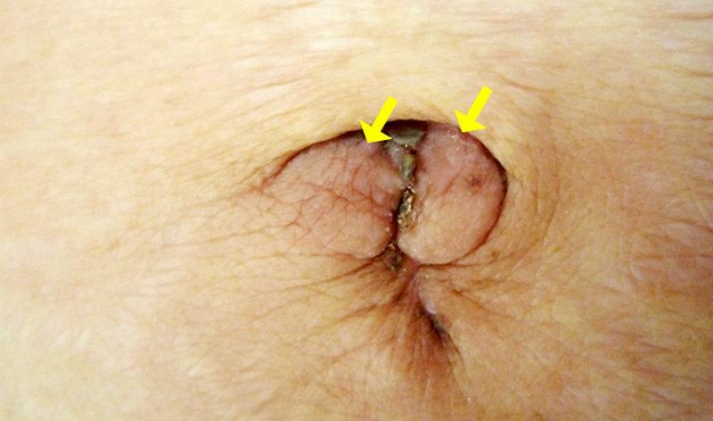 simptomă giardia la pisici tipuri de paraziti la om