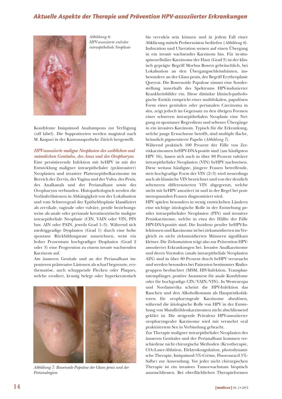 kondylome hpv therapie prezența paraziților în tratamentul simptomatic al organismului
