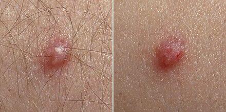 HPV genotipare în leziune/raclat (regiunea anogenitală și orală)