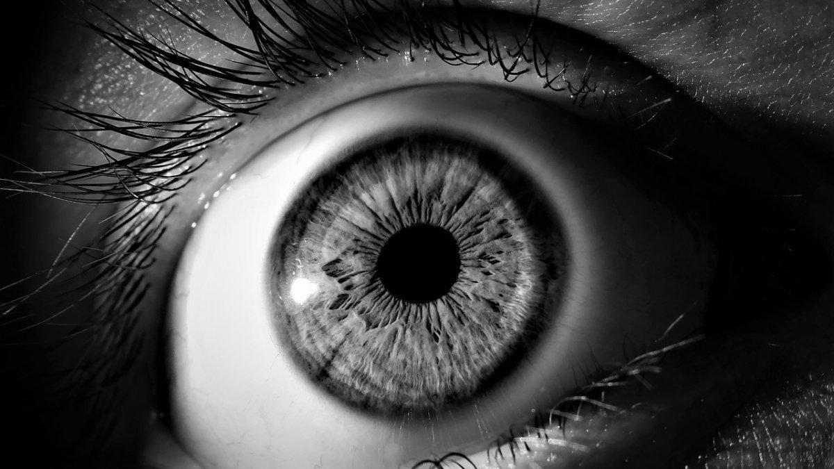 Bani pentru viermii din ochi, Hyperkeratosis and papilloma