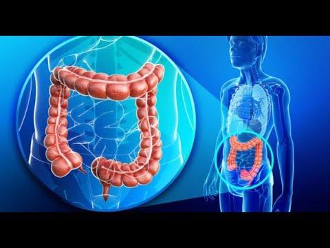 peritoneal cancer walk viermi negrii in baie