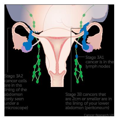 peritoneal cancer return
