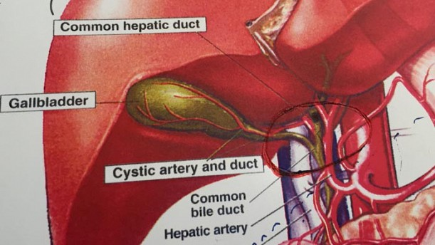 cancer pancreatic ultima faza enterobius vermicularis transmissao