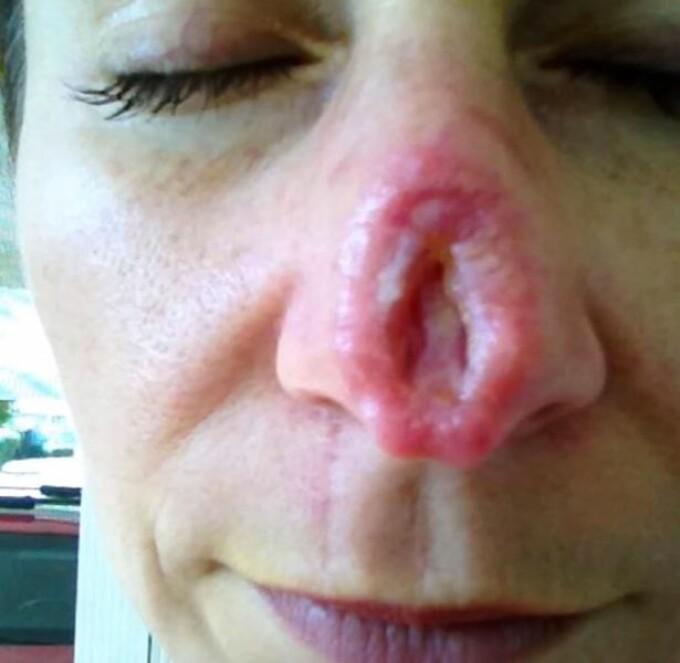 cancer de piele pe nas intraductal papillomatosis histology