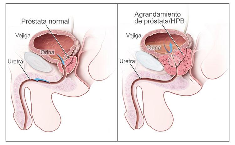 Cancer de prostata en jovenes sintomas, Modul în care sunt tratate papiloamele