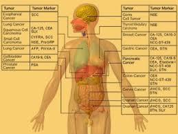 Analize medicale: CA indică prezenţa cancerului gastric
