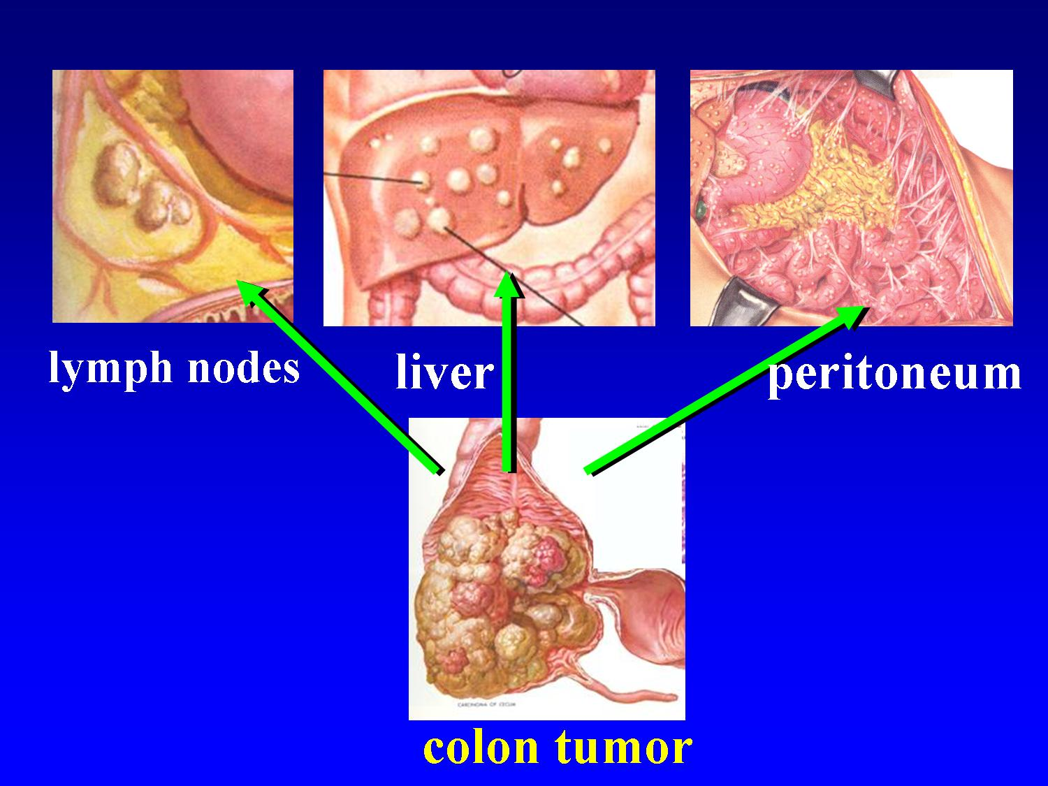 cancer in peritoneal