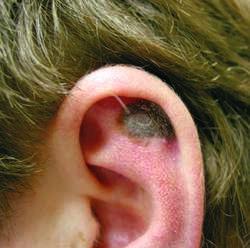 cura de detoxifiere fiere si ficat hpv in skin