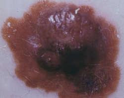 îndepărtați papilomul pe amigdală capcană bună pentru viermi cd