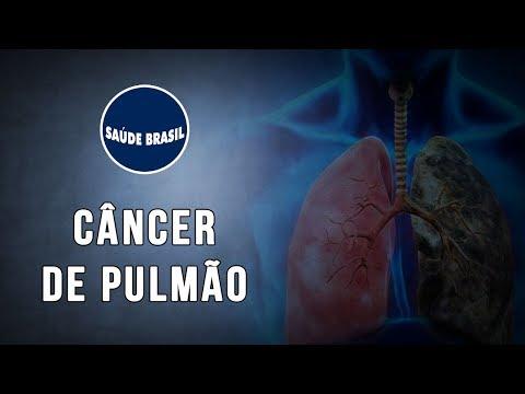 cancer noutati