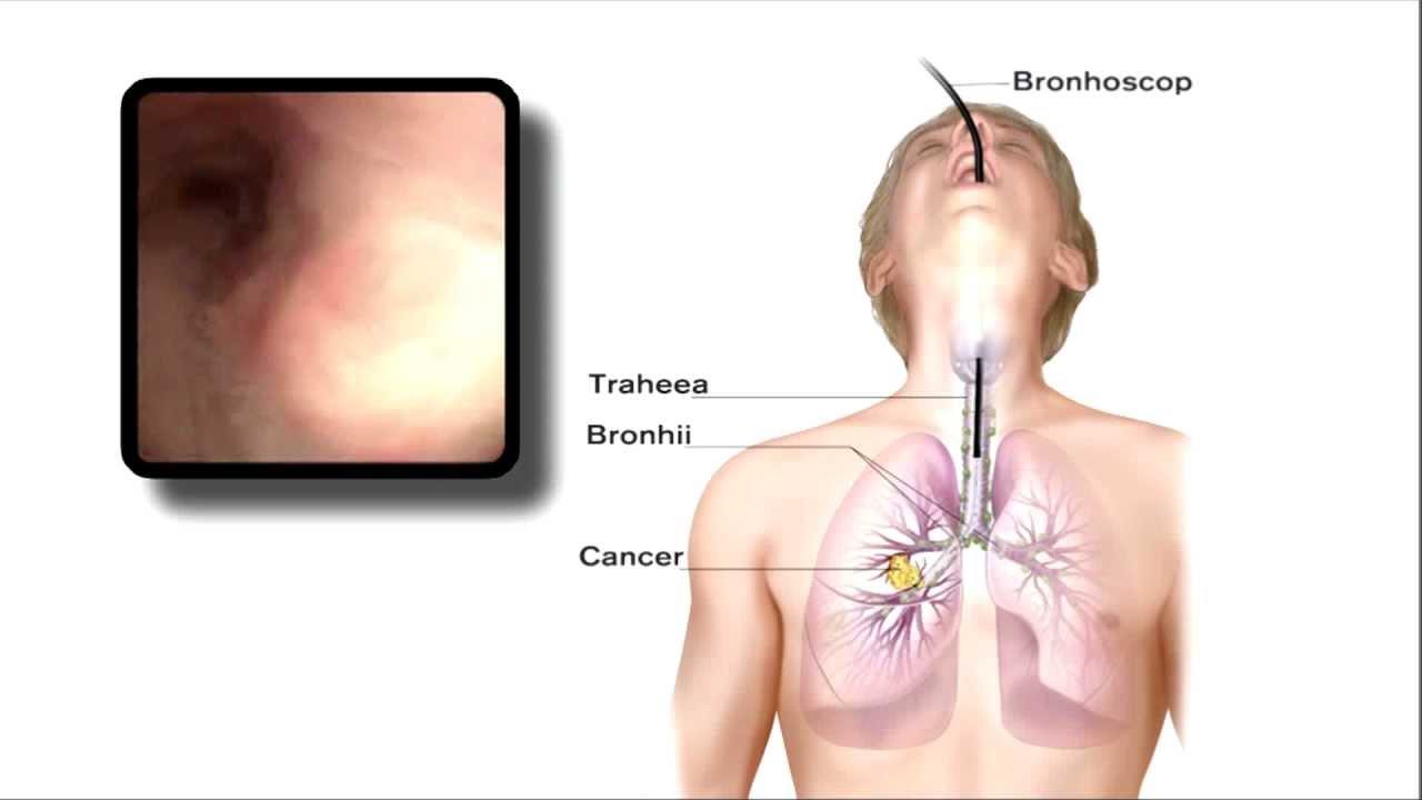 Cancer pulmonar (bronhopulmonar, plamani)   Forum despre Cancer
