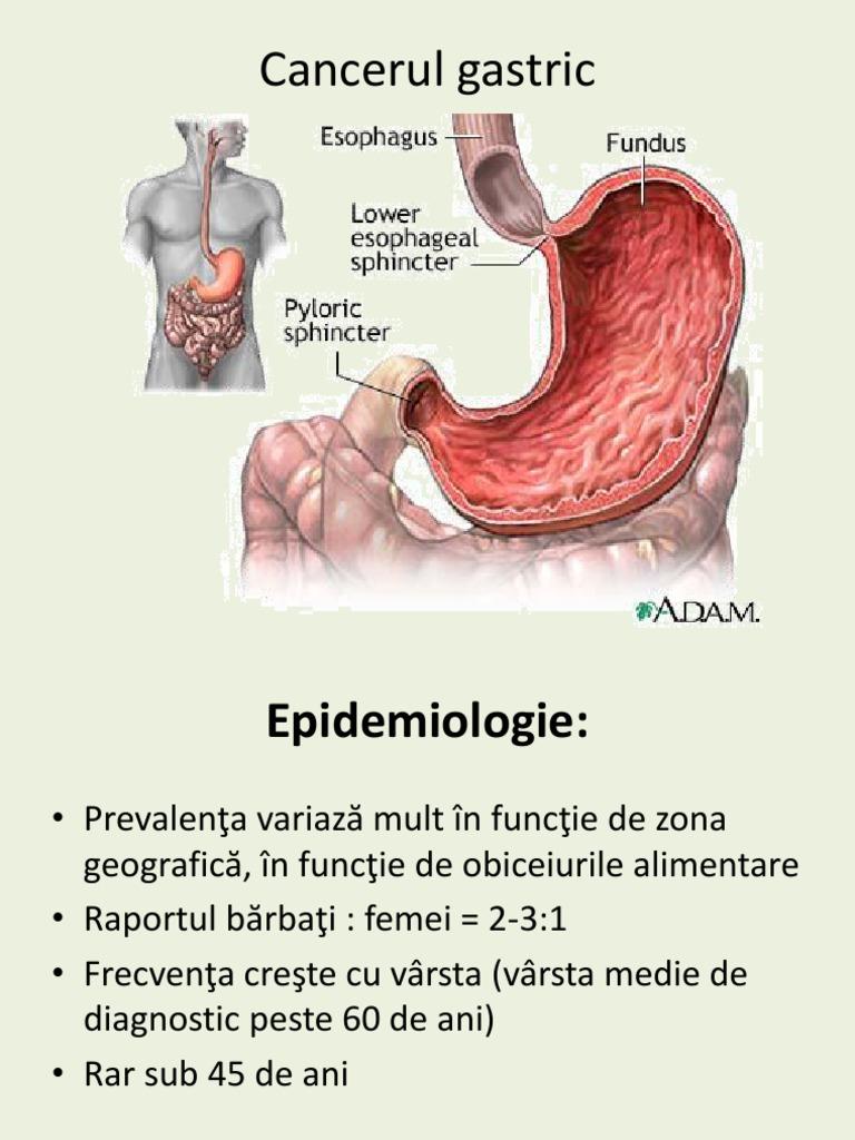 Cancer gastric | Simptome si diagnostic | Dictionarul SANADOR