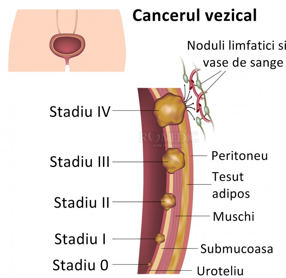 Cancerul de vezica, tratat prin chirurgie robotica | cuci.ro
