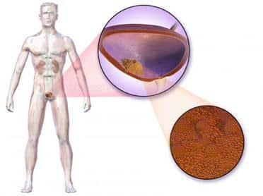 cancerul vezicii urinare îndepărtați papiloamele cu curent