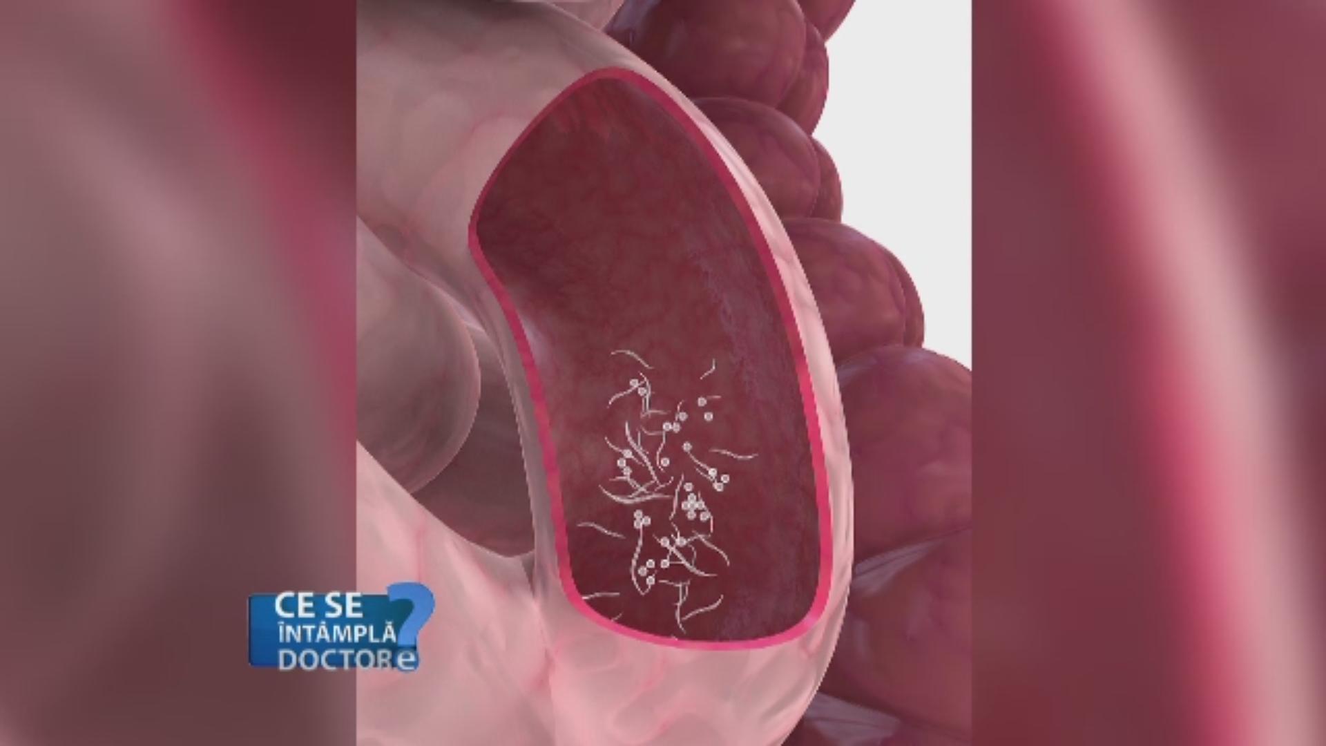 ce tablete tratează viermii