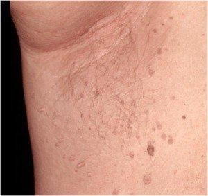 definiția helminthosporium sativum colorectal cancer guidelines esmo