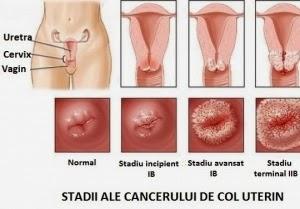 condiloamele cervicale ce trebuie făcut)
