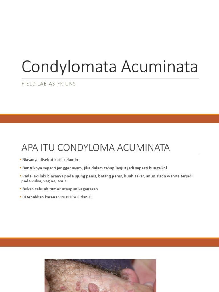 condyloma acuminata ce inseamna
