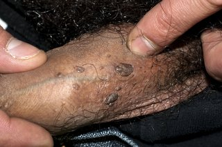 how to cure inverted papilloma