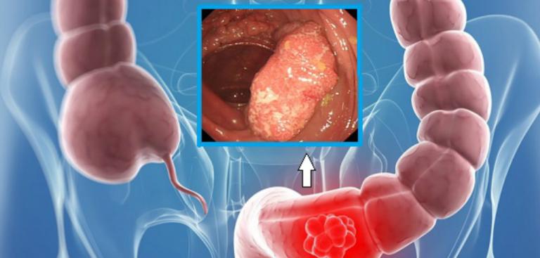 9 moduri naturale care te ajută să-ți cureți colonul de toxine