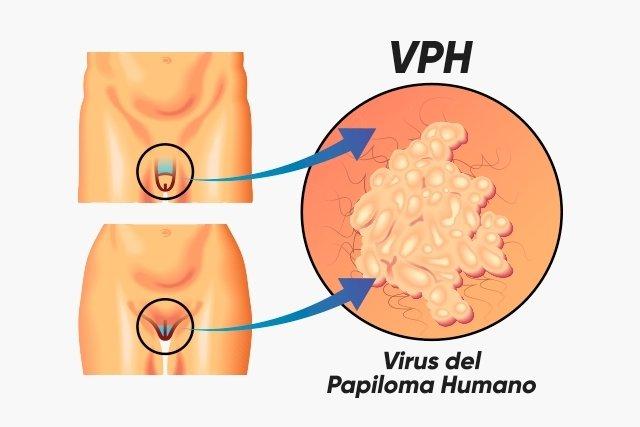 que es el virus del papiloma vph