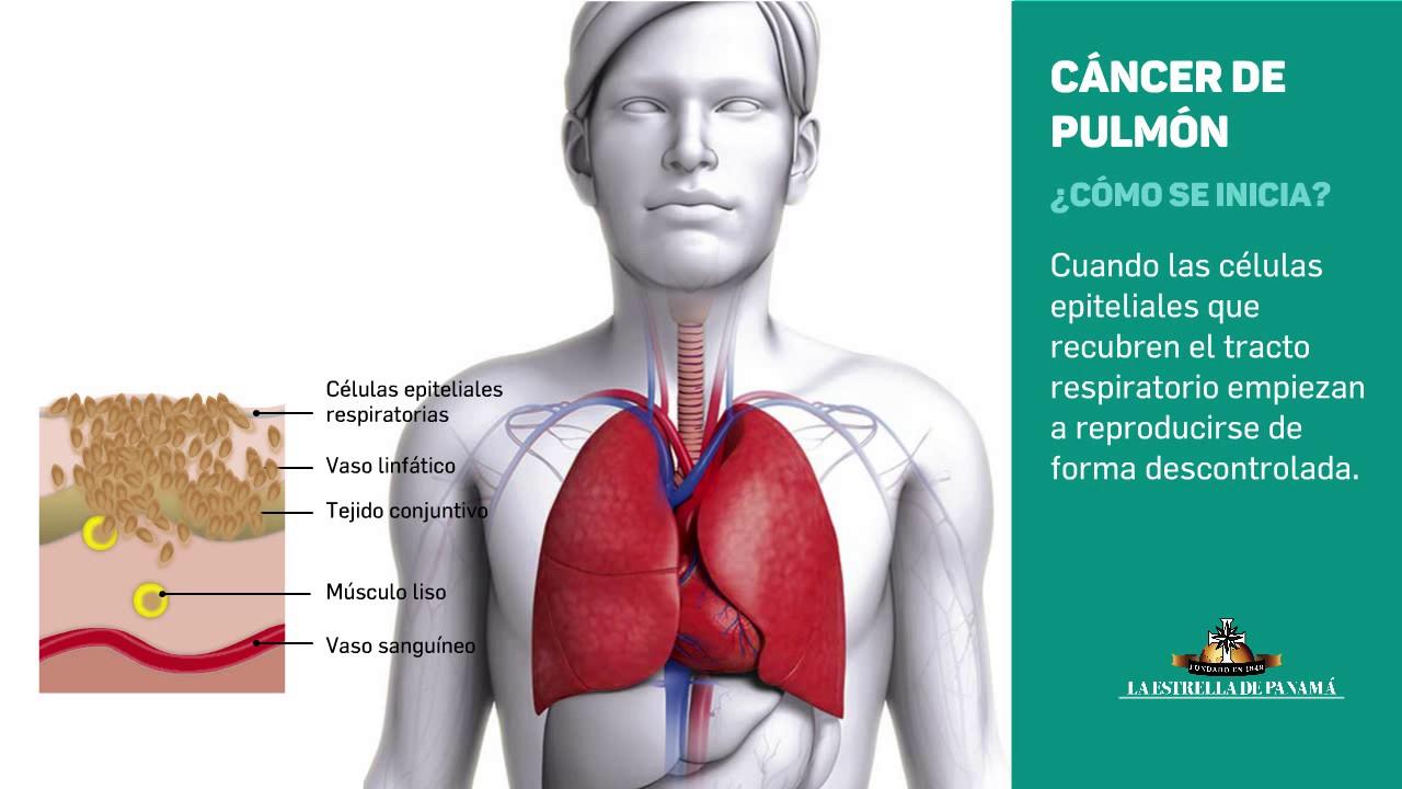 simptome de detoxifiere a corpului consecințele giardiozei la copii