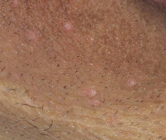 HPV cum să tratezi la bărbați