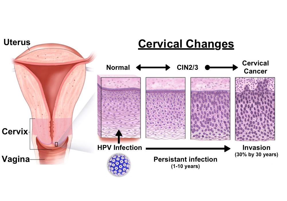 Does hpv cause rectal cancer. Does hpv cause womb cancer - Rectal cancer of the liver