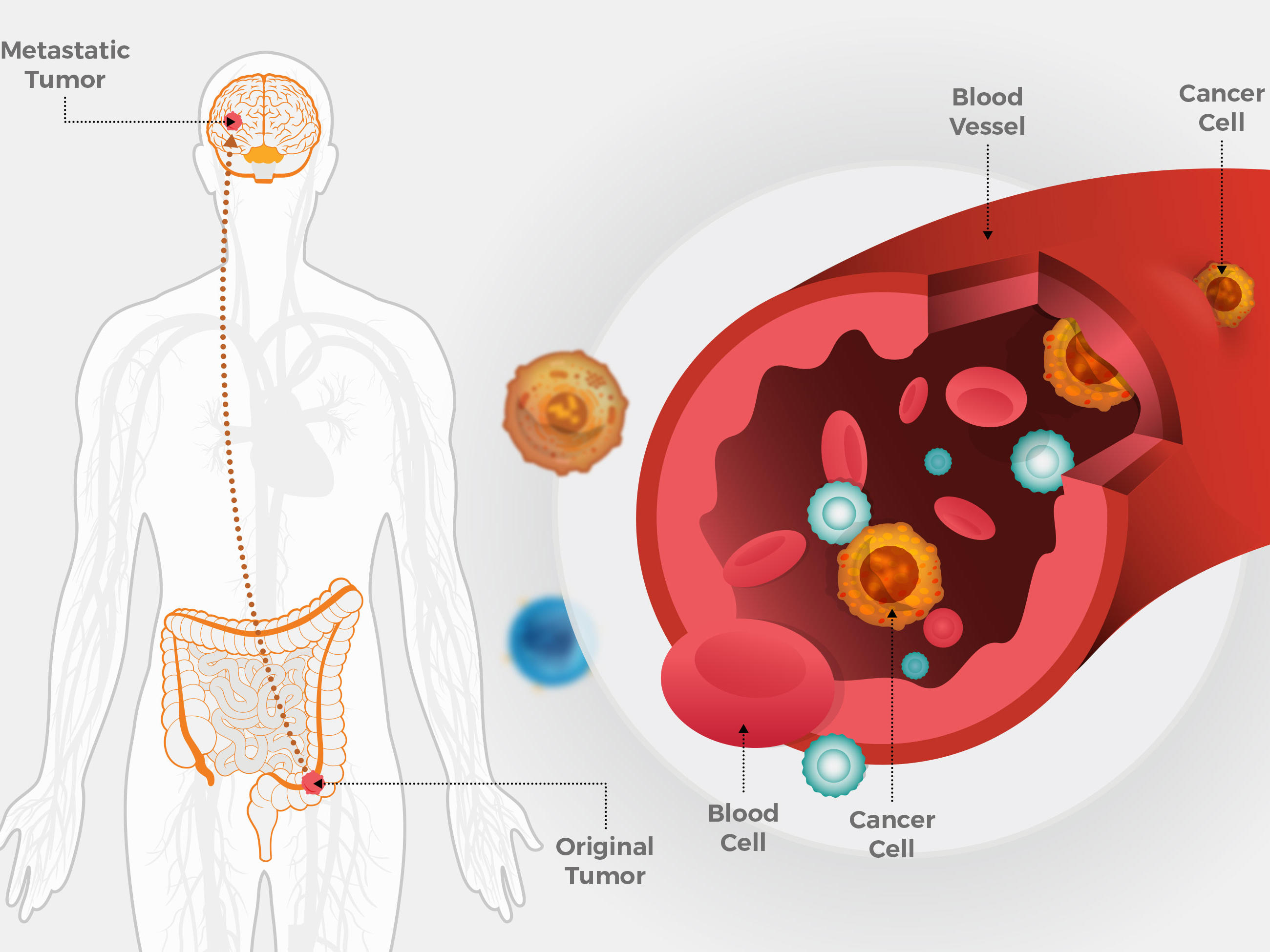 preparare parazitară în plămâni