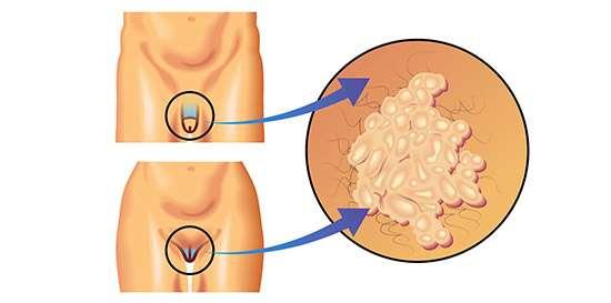 deteccion papiloma virus en hombres