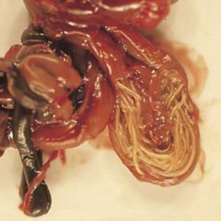viermisori intestinali)