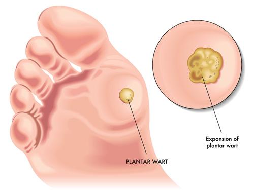 forum cum să eliminați verucile genitale produse noua viata elixir recenzii antiparazitare